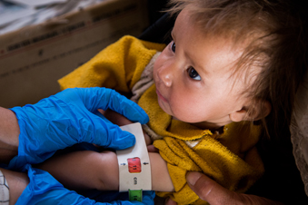 A child diagnosed by a World Vision Mobile Health Team as severely malnourished.